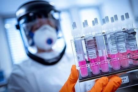 Virologen gehen davon aus, dass der Immunschutz nach der Corona-Infektion ein bis zwei Jahre anhält. Foto: Peter Steffen/dpa