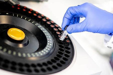 Analysegerät, das zur Bestimmung von Reinheit und Qualität von Präparaten genutzt wird. Foto: Hauke-Christian Dittrich/dpa