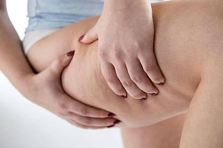 Beim Lipödem vermehrt sich Fettgewebe an den Beinen und Armen und lässt sich weder mit Sport noch Diäten abbauen. Foto: Christin Klose/dpa-tmn