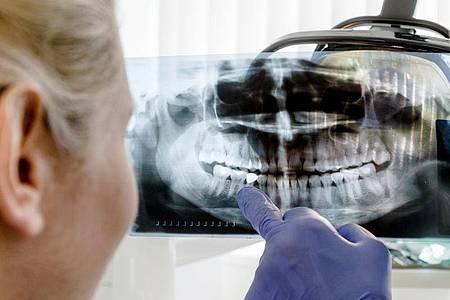 Wo genau ist das Problem? Vor der Wurzelbehandlung machen Zahnärztin oder Zahnarzt erst ein Röntgenbild. Foto: Markus Scholz/dpa-tmn