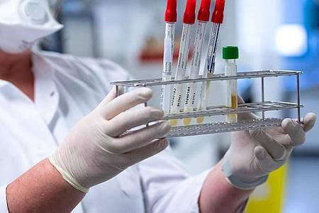 Eine Gesundheitsmitarbeiterin bereitet Tests auf das Coronavirus für die weitere Analyse vor. Foto: Sven Hoppe/dpa/Symbolbild