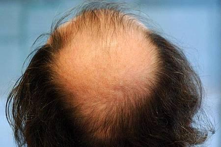 Schreck eines jeden Mannes: Haarausfall. Foto: Martin Gerten/dpa
