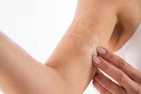 Manchmal zahlt die Krankenkasse für die Narbenbehandlung - das kann zum Beispiel der Fall sein, wenn sich der Arm nicht mehr durchstrecken lässt. Foto: Christin Klose/dpa-tmn