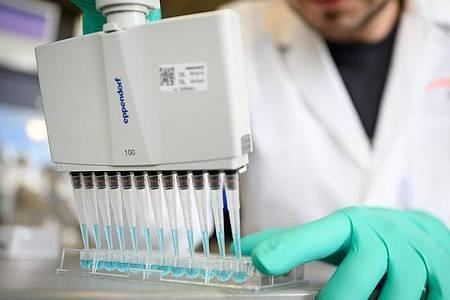 Suche nach einem Impfstoff: Ein Mann pipettiert in einem Labor des biopharmazeutischen Unternehmens Curevac eine blaue Flüssigkeit. Foto: Sebastian Gollnow/dpa