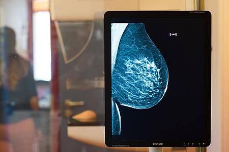 Bei der Mammographie werden die Brüste der Frau geröntgt. Foto: Klaus-Dietmar Gabbert/dpa-Zentralbild/dpa-tmn